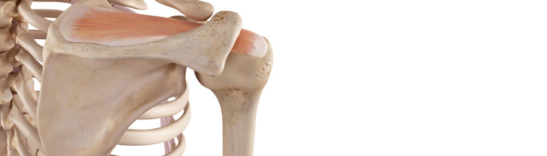 schulter arthrose symptome