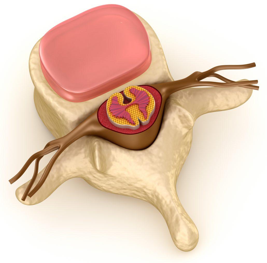 Lendenwirbelschmerzen mit neuer Behandlungsmethode behandeln