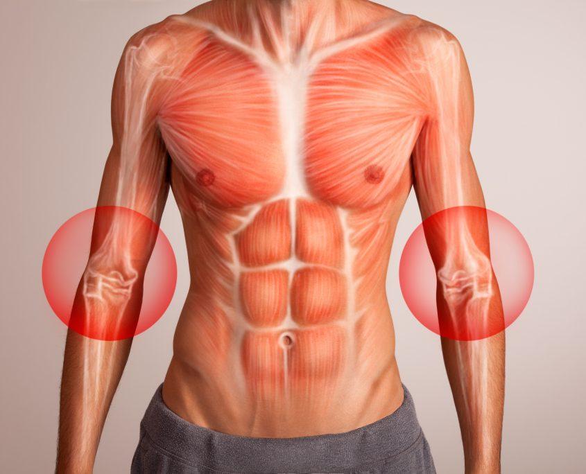 Schmerzen: EIM Myofasziale Faszien Behandlung mit neuer Technologie