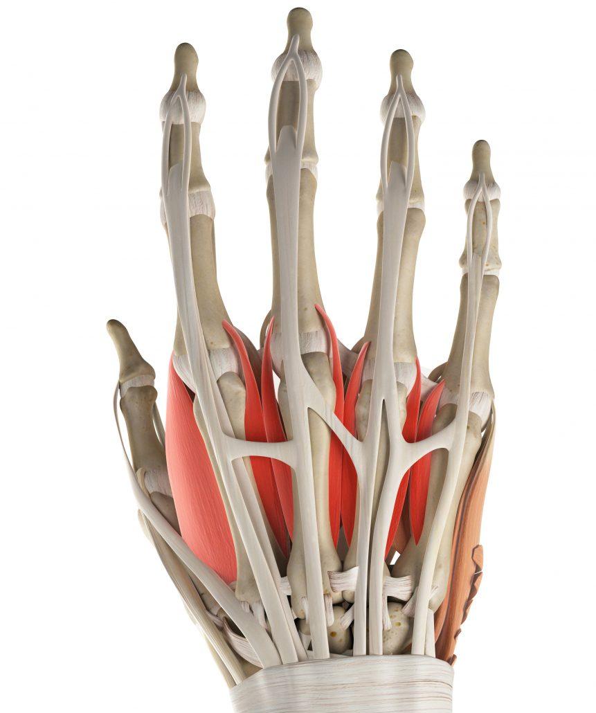 Handschmerzen und Schmerzen im Handgelenk erfolgreich und dauerhaft ...
